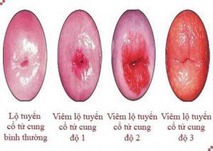Viêm lộ tuyến cổ tử cung được chia làm 4 cấp độ. (Ảnh Internet)