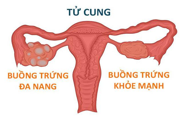 Buồng trứng đa nang có thể ảnh hưởng đến sức khỏe sinh sản của nữ giới