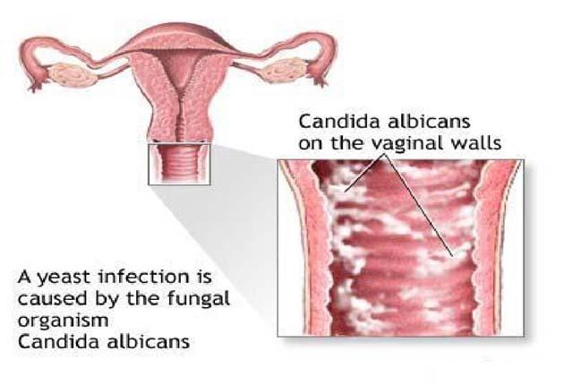 Hiện nay có rất nhiều chị em bị viêm âm đạo do nấm