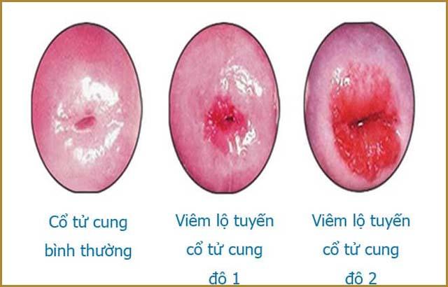 Viêm lộ tuyến cổ tử cung với mức độ tổn thương rộng