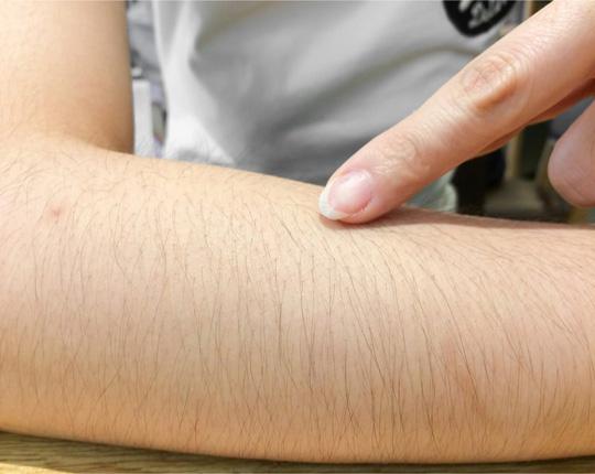 Rậm lông là một triệu chứng điển hình của hội chứng
